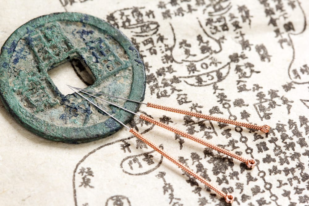 Acupuncture for Organizations